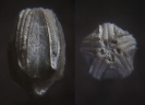 Blastoidea Devonoblastus whiteavesi REIMANN